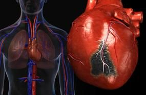 These 10 Signs Show You Are Likely To Have A Heart Attack Soon