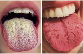 Health Warning Signs Sent By Your Tongue