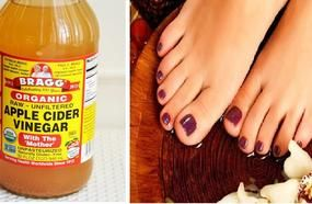 If You Soak Your Feet In Apple Cider Vinegar, This Is The Incredible Result