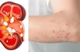 8 Signs That Kidney Is In Danger