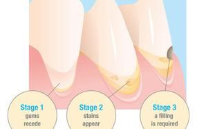 Symptoms, Stages And Treatments Of Tooth Cavities