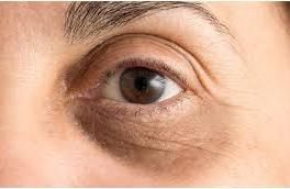 Learn The Best Natural Treatments To Remove Dark Circles And Bags Under The Eyes. Super Express Remedies!