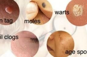 How To Easily Remove Skin Tags, Moles, Blackheads, Spots And Warts By Natural Remedies
