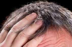 How To Stop And Reverse Grey Hair