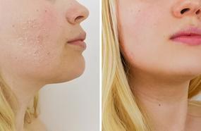 Skin-Transforming Masks You Can Make At Home