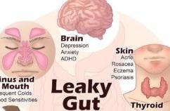 Heal Leaky Gut And Autoimmune Disease With 4-Step Process
