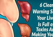 6 Clear Warning Signs Your Liver Is Full of Toxins And Making You Fat