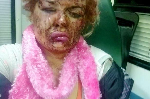 Woman's Horror Injuries After Partner Tried Gouging Her Eyes During Drunken Rage