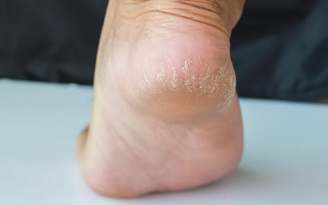 What Really Causes Cracked Heels-and How to Get Rid of Them