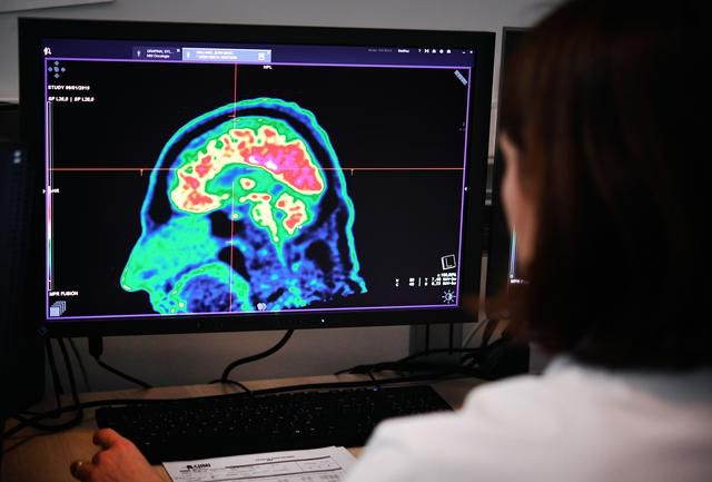 Science: How Brain Scans Can Detect Suicide Risks
