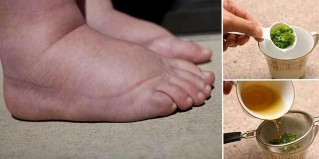 Say Goodbye to Fluid Retention, Swelling and Overweight Quickly and Efficiently With This Amazing Recipe