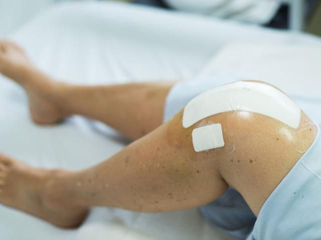 What the Future Holds for Knee Replacement Surgery