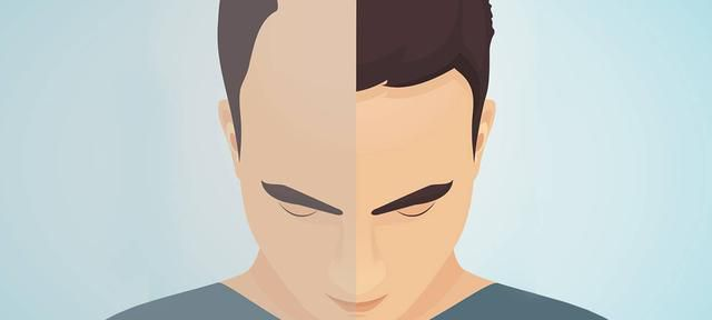 Hair Transplants: The Options, The Costs & The Results To Expect
