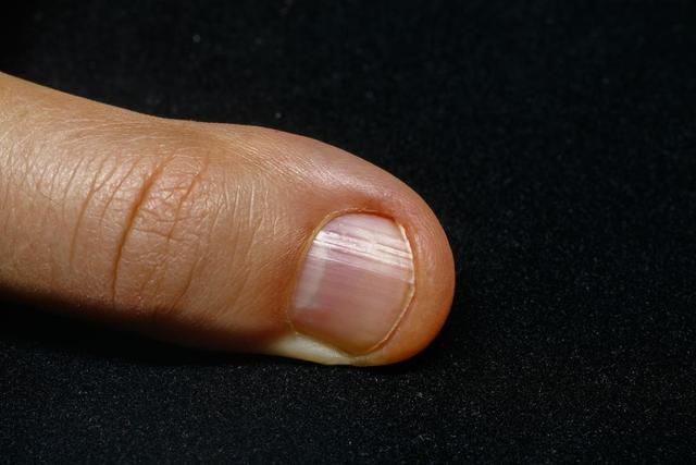 No half-moon on nails: What does it mean?