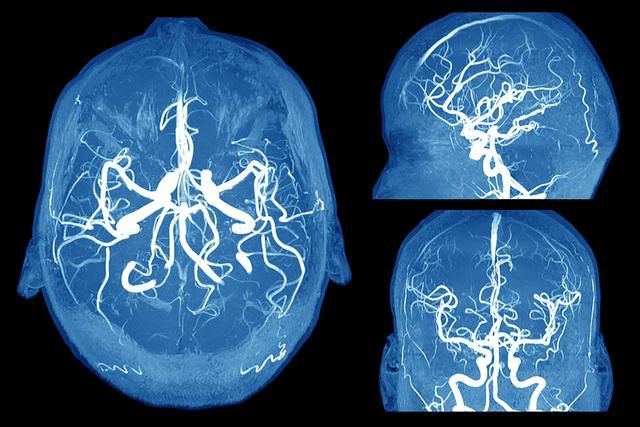 6 Scary Signs of a Brain Aneurysm Everyone Should Know