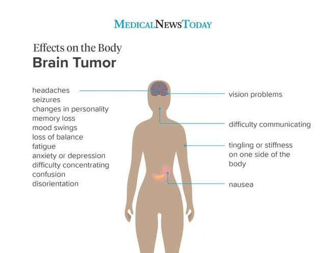 What are the early symptoms of a brain tumor?