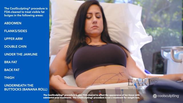 Earl MD difference in Cool Sculpting