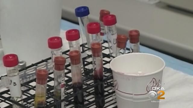 Blood Type May Hint At How Hard Coronavirus Hits, Study Says
