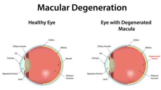 Research Reveals the Causes and Early Signs of Macular Degeneration
