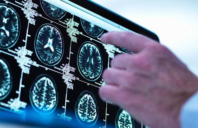 Brain stays conscious after death