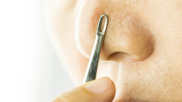 Step Away From The Magnifying Mirror: Those Are (Probably) Not Blackheads On Your Nose