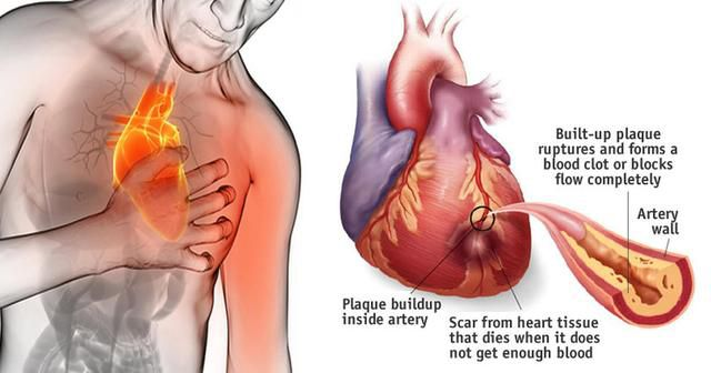 80% Of Heart Attacks Could Be Avoided If Everyone Did These Easy Things