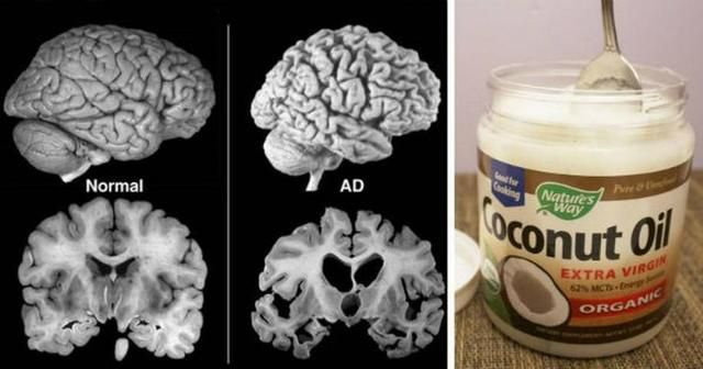 He Eats 2 Tbs of Coconut Oil Twice a Day for 60 Days And THIS Happens To His Brain!