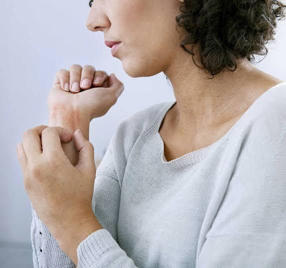 Foods you should Avoid when Dealing with Eczema